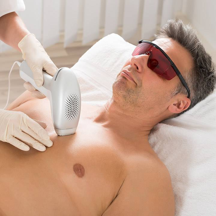 Oferta depilación láser - 5+1 gratis