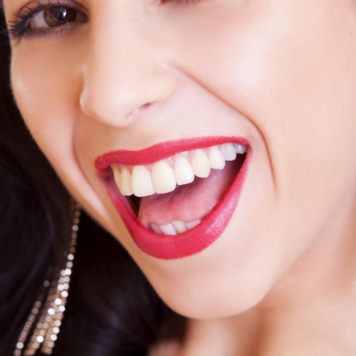 ¿Quieres tener una sonrisa blanca?