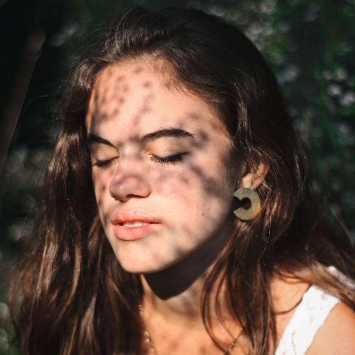 5 datos sobre la piel problemática