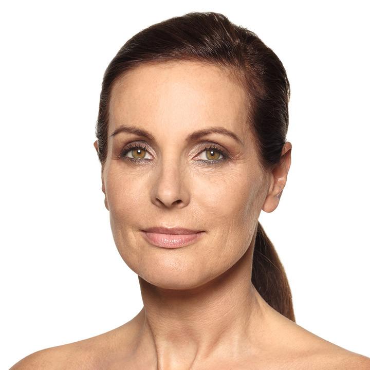Tratamiento rejuvenecimiento facial Vitamina A