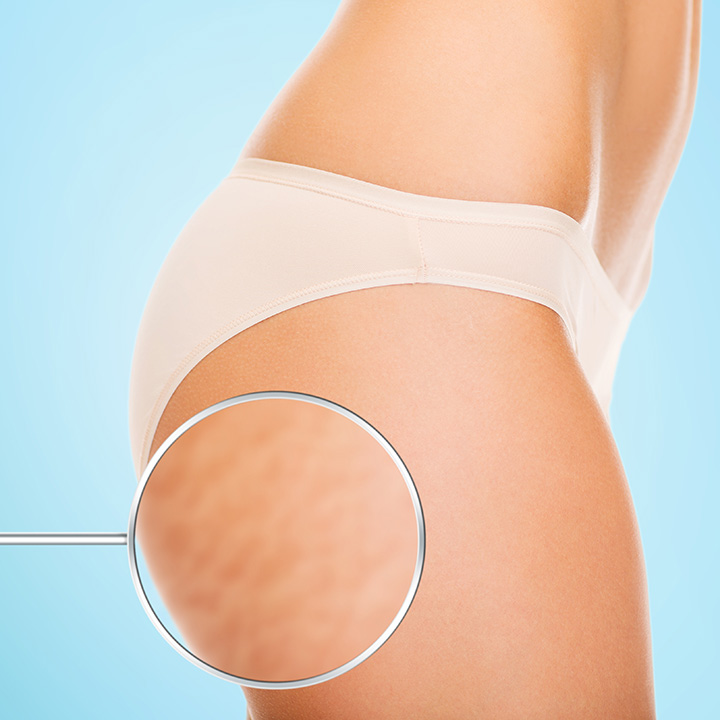 Tratamiento Contra Celulitis y Estrías Med Shape 360