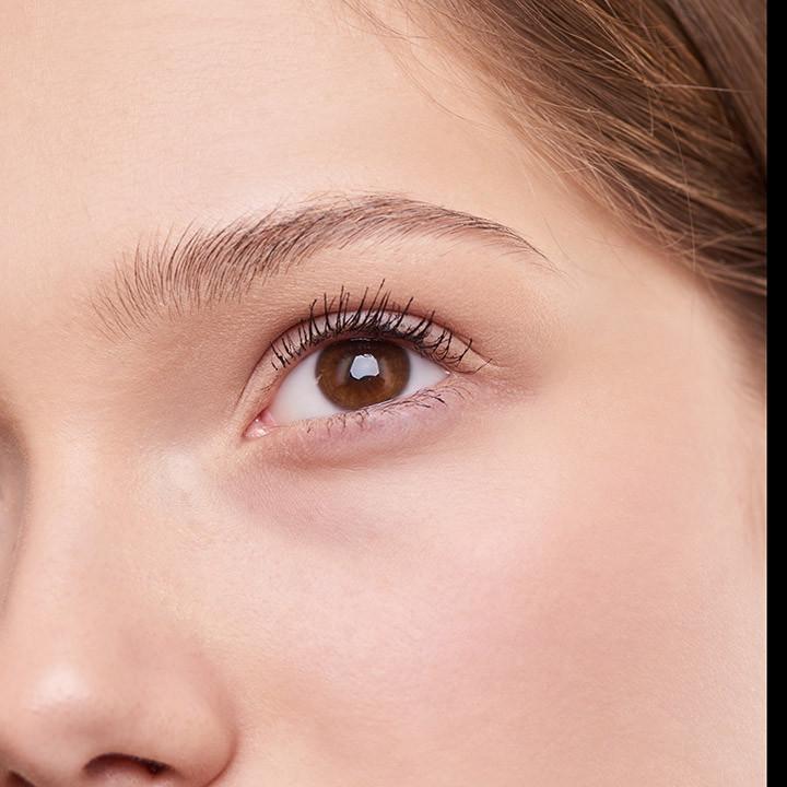 Tratamiento Radiofrecuencia contorno de ojos